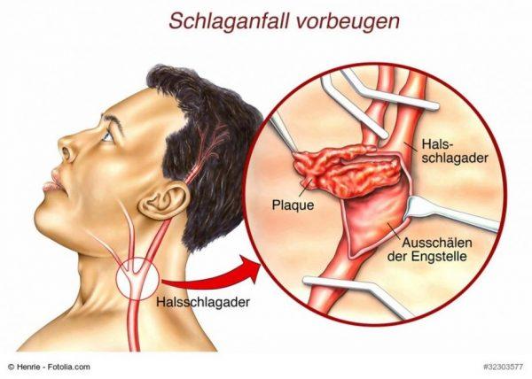 Στένωση Καρωτίδας Όλα τα συμπτώματα - Τι πρέπει να κάνω